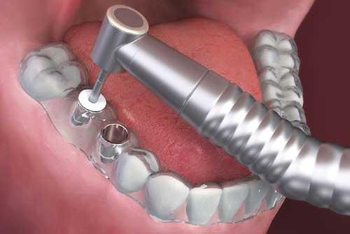 Férula quirúrgica para la colocación guiada del implante dental