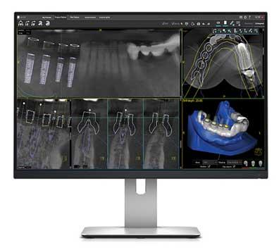 Implantes dentales. Software para la planificación de la cirugía oral guiada
