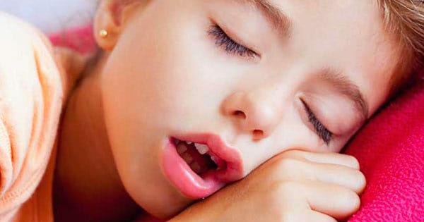 Síndrome de respiración bucal