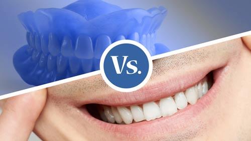 ¿Dentadura postiza o Implantes dentales?