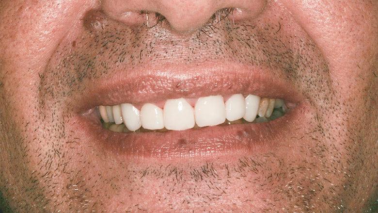 Tratamiento con carillas dentales en clínica dental Arturo Martos en Granada. Resultado tras el tratamiento.