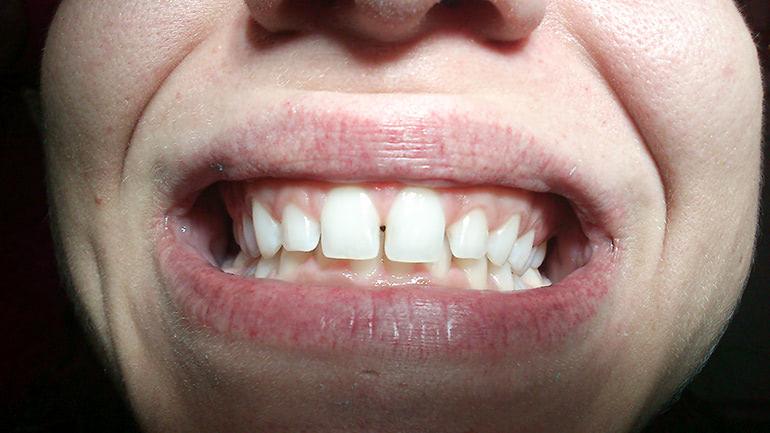 Tratamiento con carillas dentales en clínica dental Arturo Martos en Granada. Situación previa.