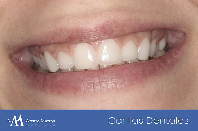Tratamiento con carillas dentales en clínica dental Arturo Martos en Granada. Resultado actuación.