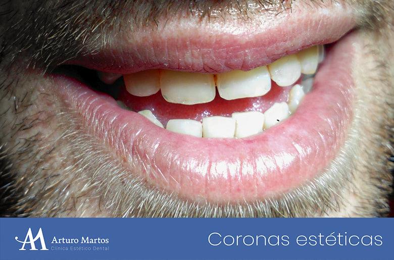 Tratamiento estético con corona dental