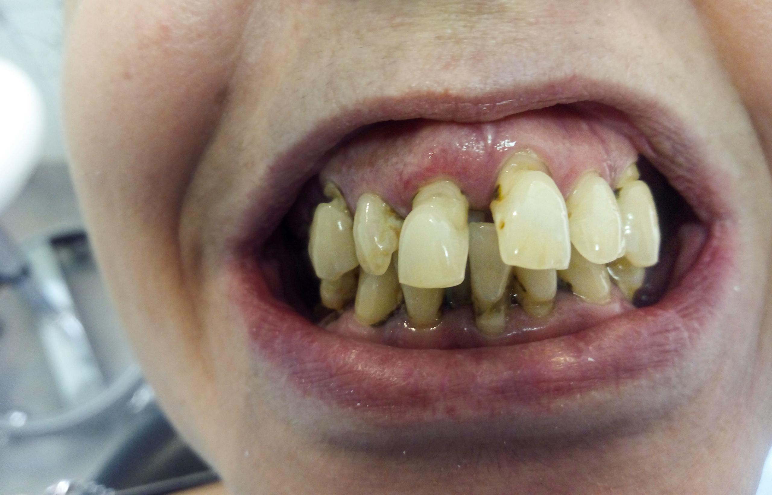 Tratamiento recperación inferior y superior maxilar completa en clínica dental Arturo Martos en Granada. Antes.
