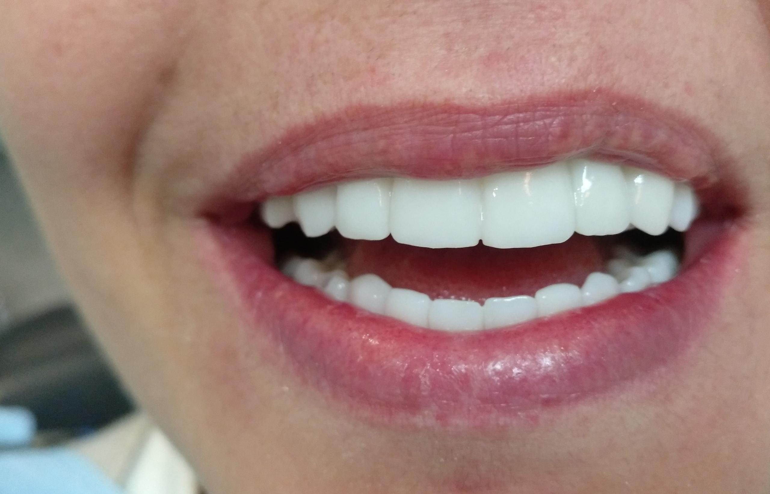Tratamiento recperación inferior y superior maxilar completa en clínica dental Arturo Martos en Granada. Después.