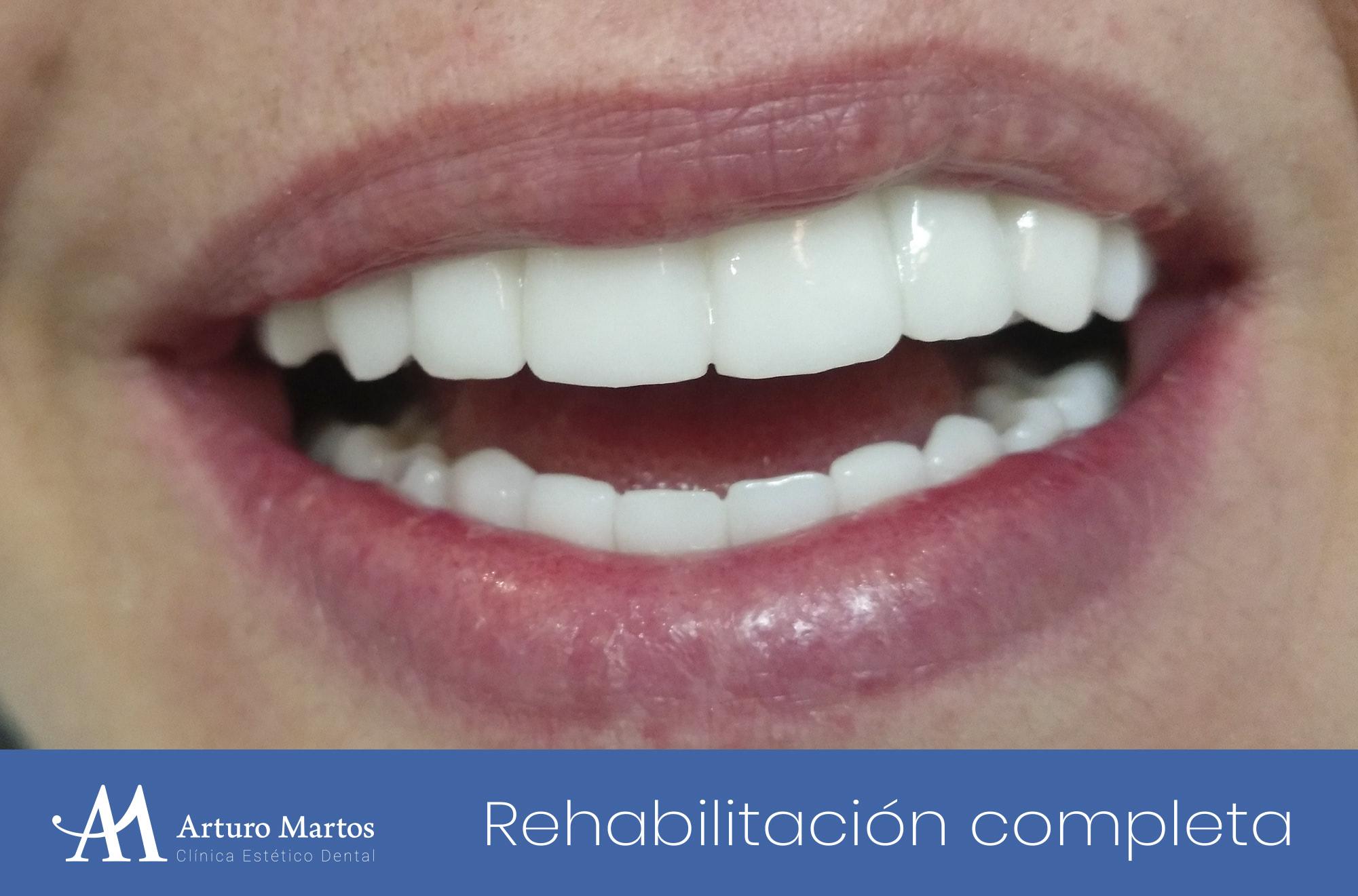Tratamiento recperación inferior y superior maxilar completa en clínica dental Arturo Martos en Granada.