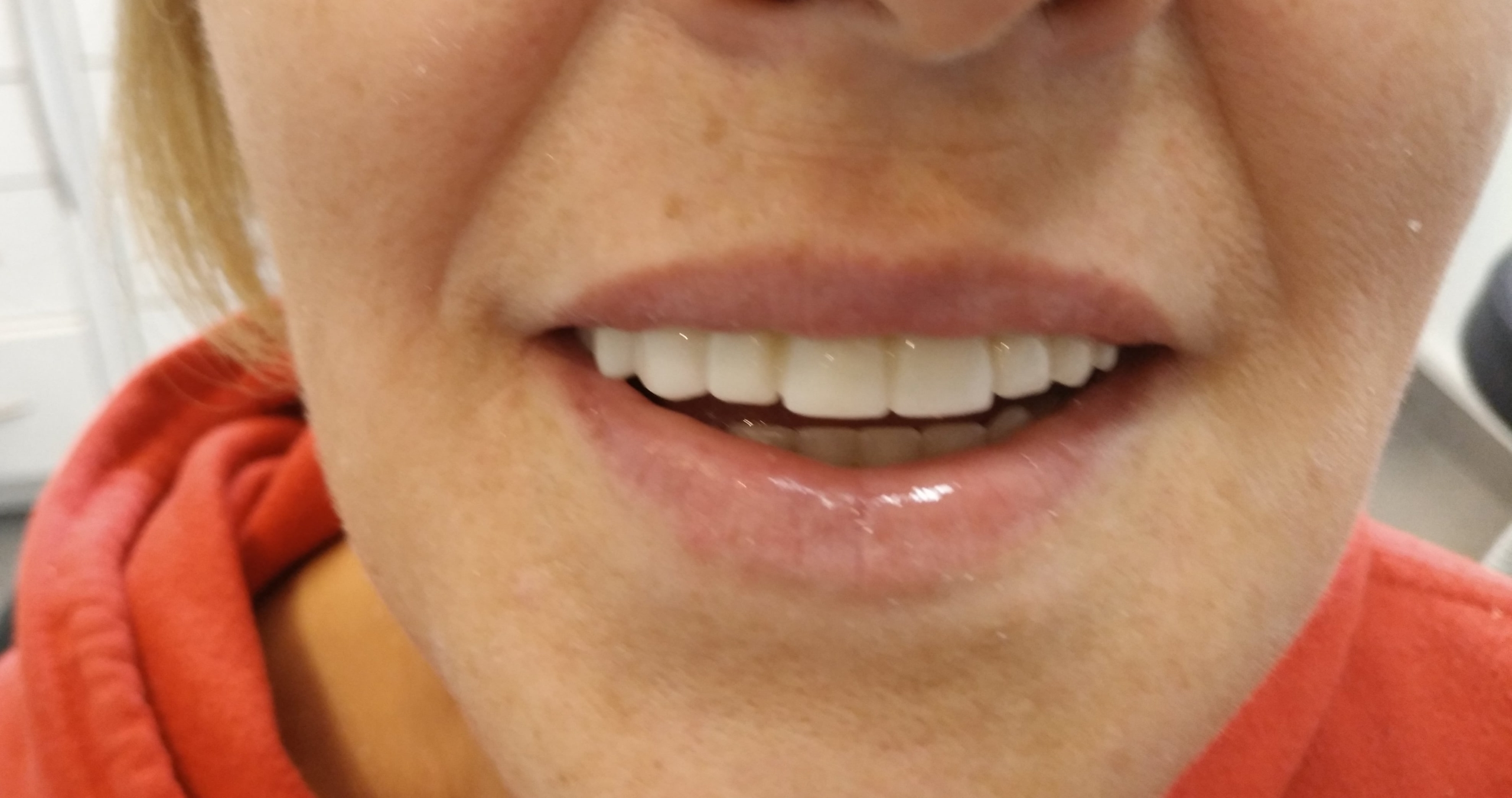 Tratamiento recuperación inferior y superior maxilar completa en clínica dental Arturo Martos en Granada.