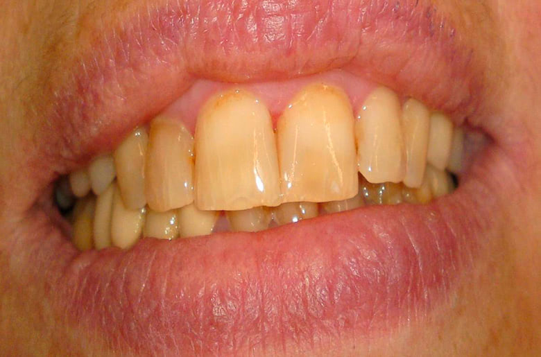 Tratamiento con carillas dentales en clínica dental Arturo Martos en Granada. Antes del tratamiento.