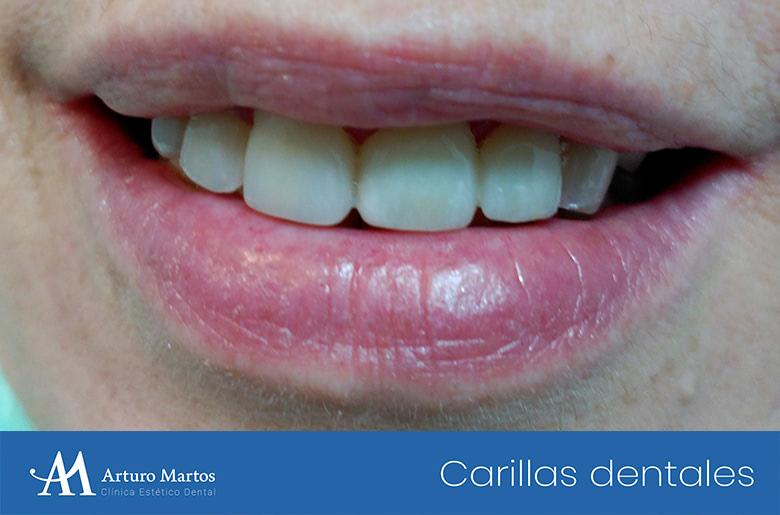 Tratamiento con carillas dentales en clínica dental Arturo Martos en Granada. Portada.