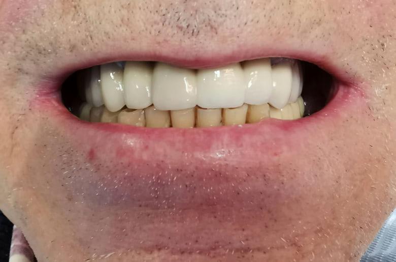 Protesis conservadora superior en clínica dental Arturo Martos en Granada. Después del tratamiento.