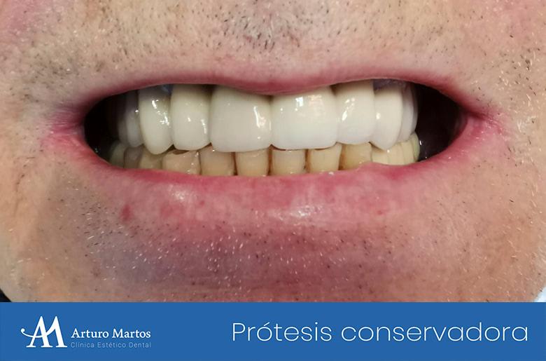 Protesis conservadora superior en clínica dental Arturo Martos en Granada.