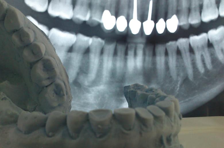 Rehabilitación de pérdida de esmalte y dentina en clínica dental Arturo Martos en Granada. Tratamiento.