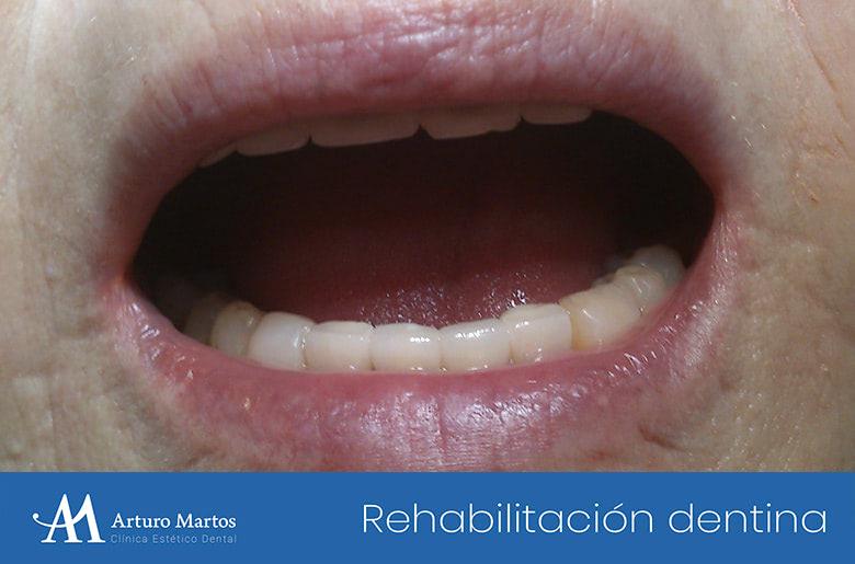 Rehabilitación de pérdida de esmalte y dentina en clínica dental Arturo Martos en Granada. Resultado actuación.