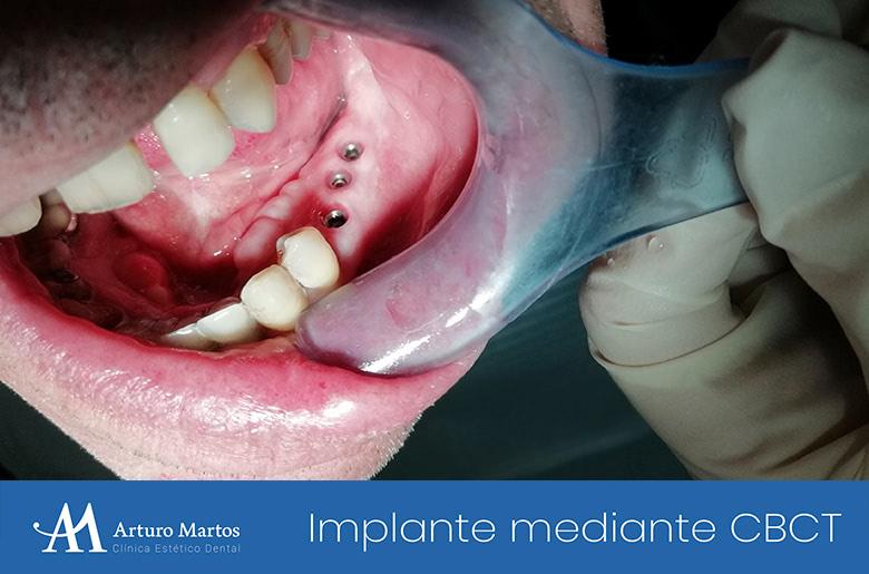 Implantes dentales mediante técnica CBCT. Clínica Dental Arturo Martos en Granada