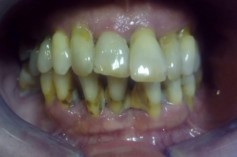 rehabilitacion maxilar superior estado previo a la actuación. Enfermedad periodental
