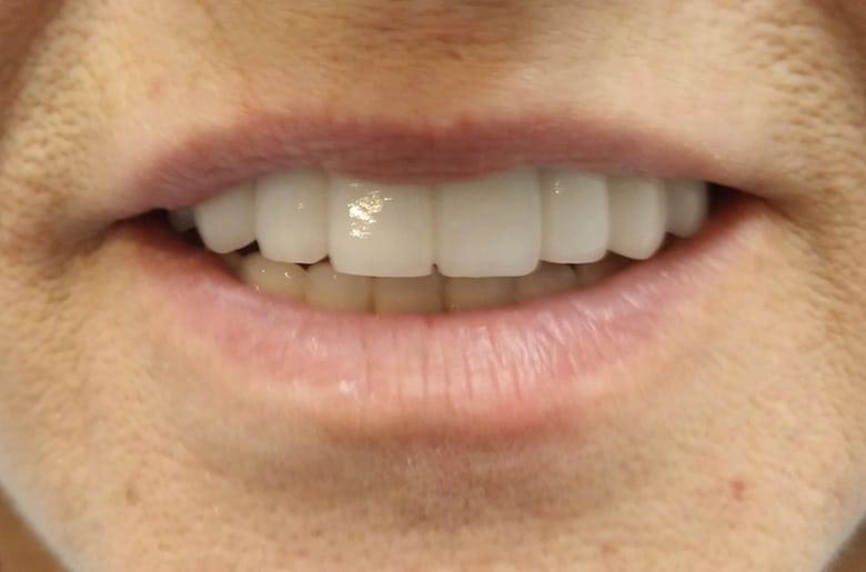 rehabilitacion maxilar superior. Resultado final