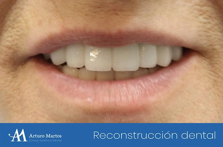 rehabilitacion maxilar superior