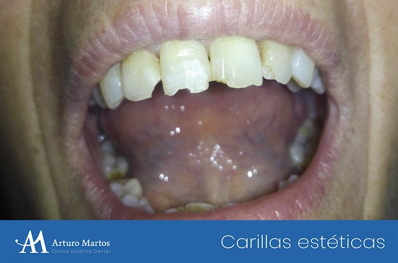 Tratamiento con carillas estéticas de composite en clínica dental Arturo Martos en Granada. Antes del tratamiento.
