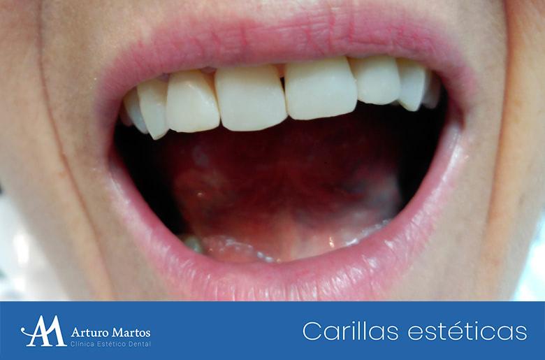 Tratamiento con carillas estéticas de composite en clínica dental Arturo Martos en Granada. Después del tratamiento.